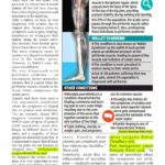 Unusual syndromes may mimic sciatica, say experts
