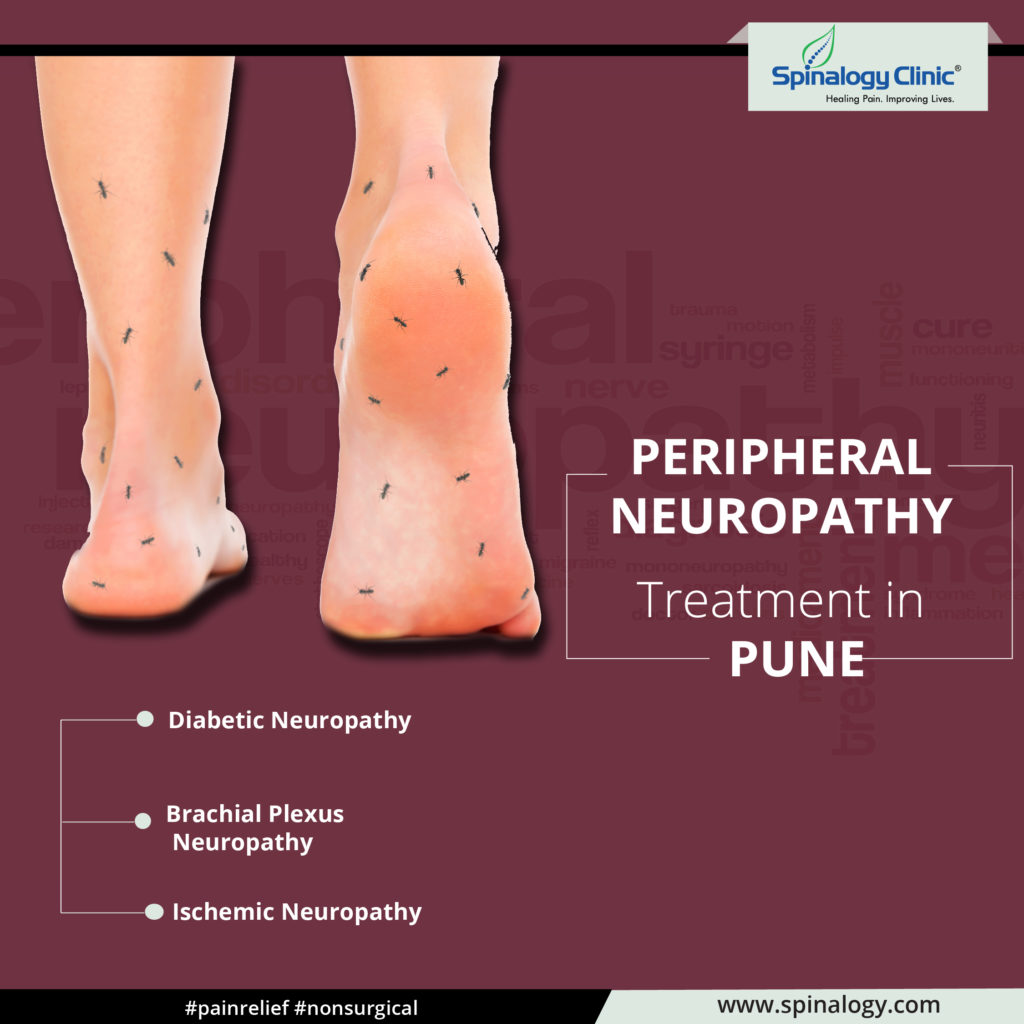 Peripheral Neuropathy Treatment in Pune