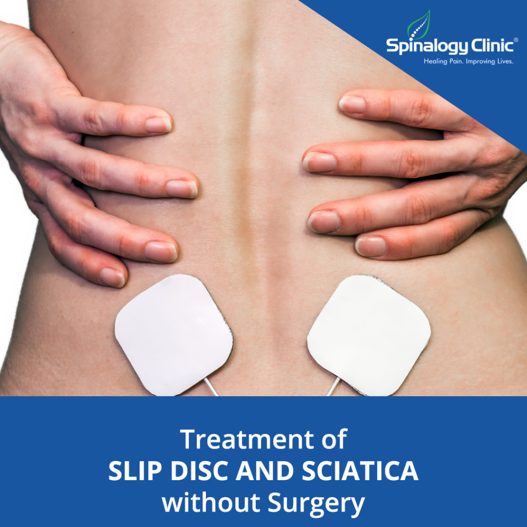 Treatment of Slipped Disc without a Surgery
