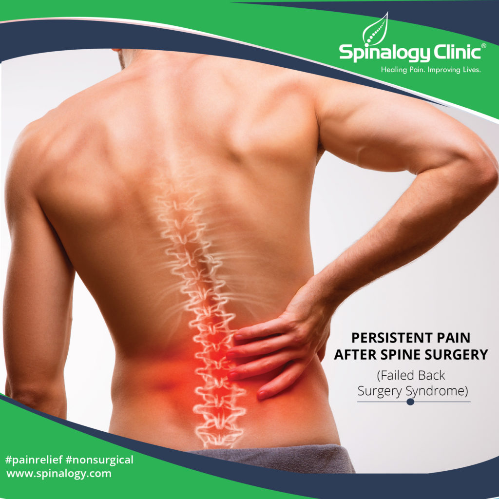 Persistent Pain after Spine Surgery (Failed Back Surgery Syndrome)