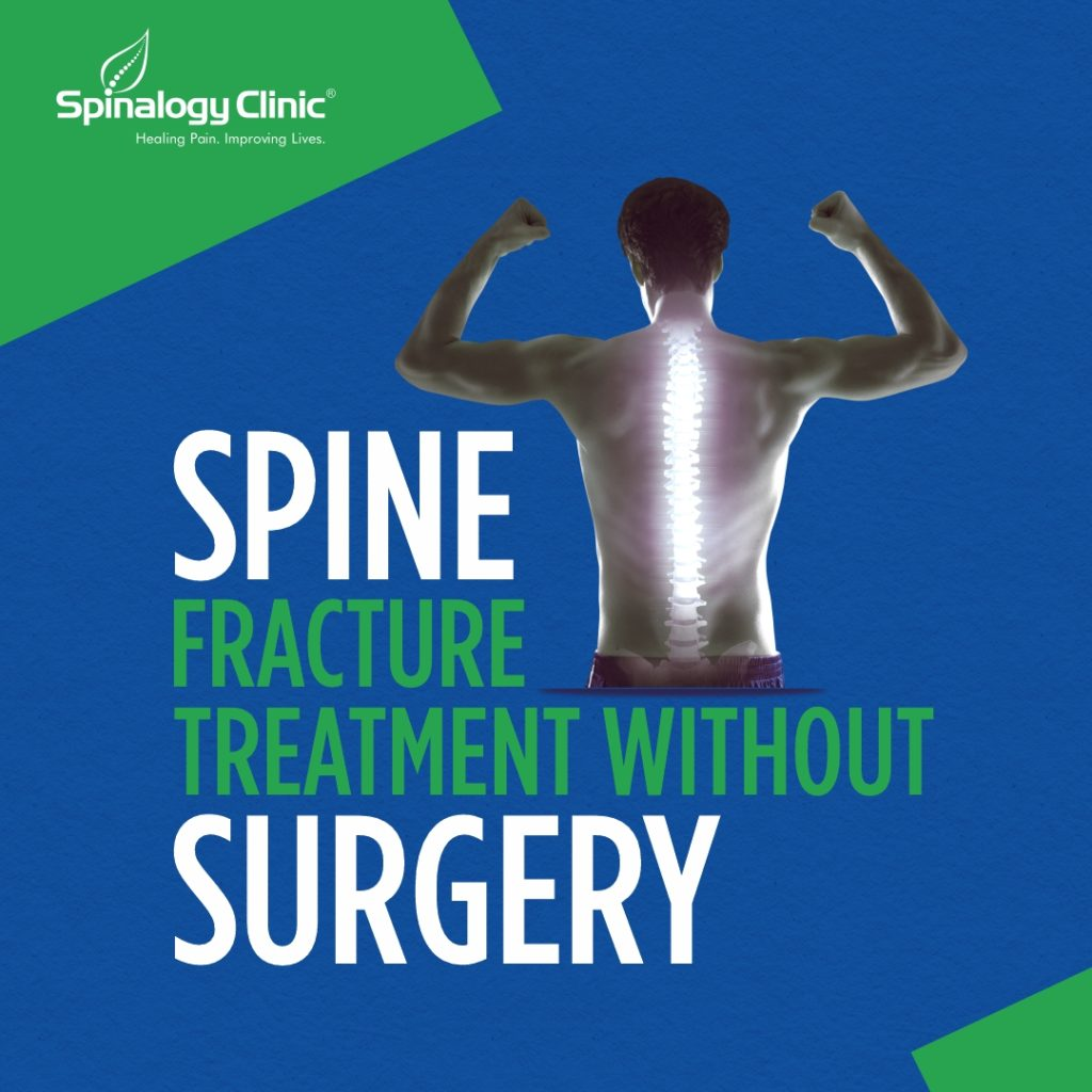 Spine Fracture Treatment without Surgery