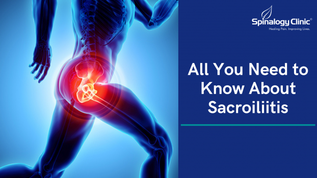 All You Need to Know About Sacroiliitis