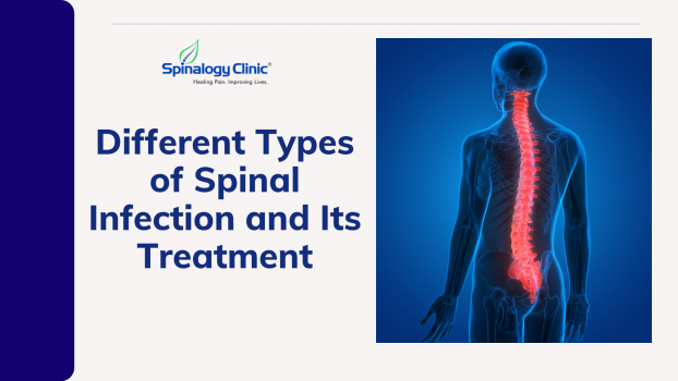Different Types of Spinal Infection and Its Treatment